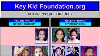 Free Surgery on Children Web Site